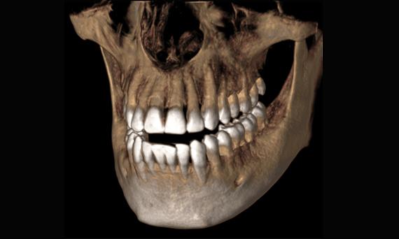 Wichita Dental CT Scan
