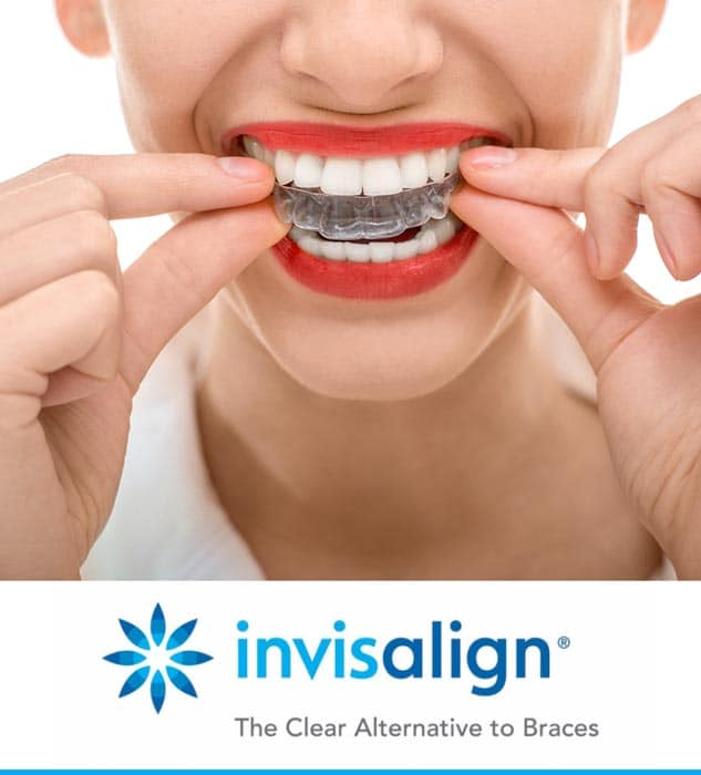 invisalign-smiles-by-design-clear-braces-family-dentistry-wichita-kansas