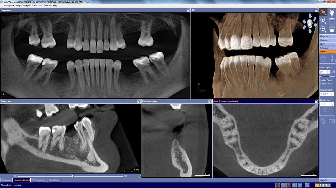 Wichita Dental 3D Scans